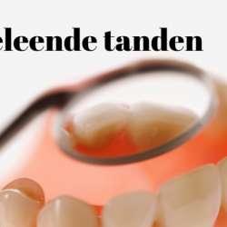 Geleende tanden